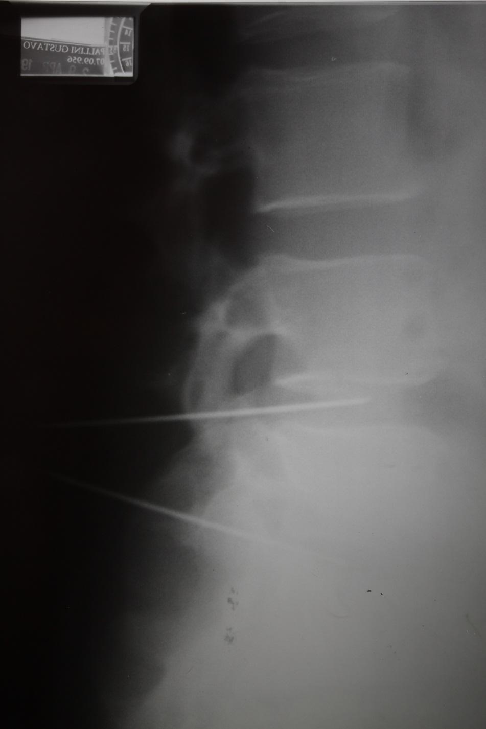 6-7 vertebre di reparto di petto